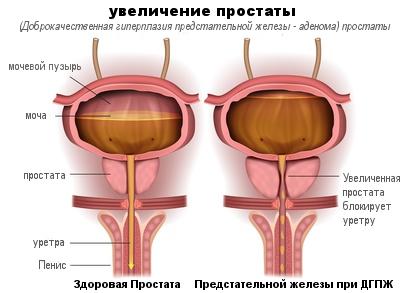 Увеличение простаты у мужчин: причины, симптомы и лечение при нарушениях