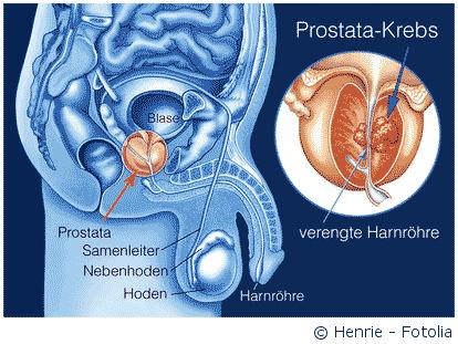 Prostatakrebs: Behandlung, Prognose & Spezialisten