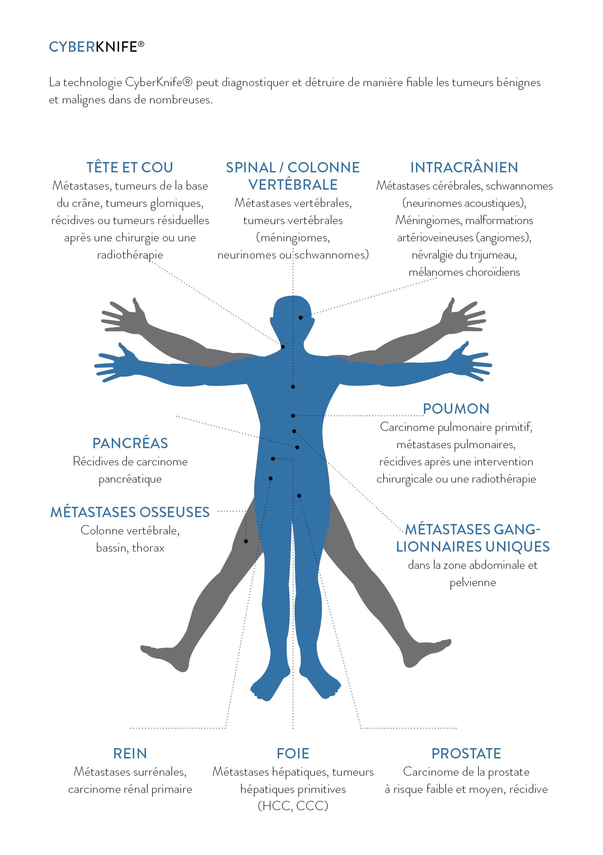 Stretching és prostatitis