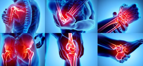 Doctors and medical centres specialising in Bones & joints