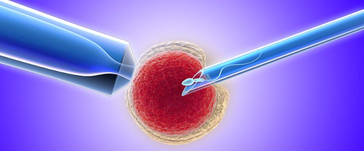 Doctors and medical centres specialising in ICSI (Intracytoplasmic sperm injection)