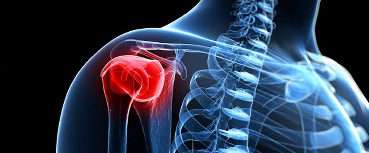 Doctors and medical centres specialising in Humeral head fracture